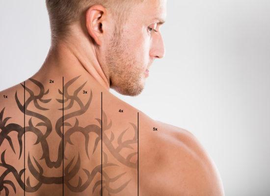 Usuwanie Tatuaży Zbigniew łucki Chirurg Plastyczny